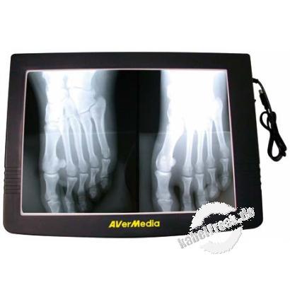 AVer Durchlichteinheit für Präsentationskameras/Dokumentenkameras, schwarz Zur Präsentation von Dias, Negativen, Röntgenbildern usw